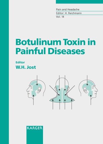 Botulinum Toxin in Painful Diseases - Pain and Headache 14 (Hardback)