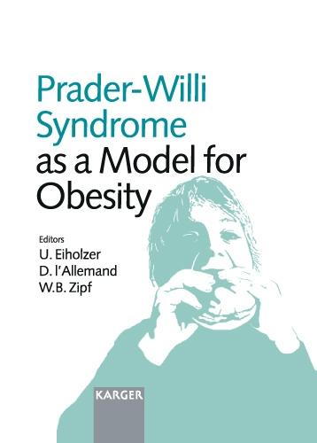 Prader-Willi Syndrome as a Model for Obesity: International Symposium, Zurich, October 2002. (Hardback)