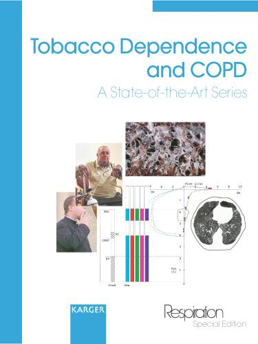 Tobacco Dependence and COPD: A State-of-the-Art Series. Reprint of: 'Thematic Review Series' published in Vol. 68 (2001) and 69 (2002) Respiration (Paperback)