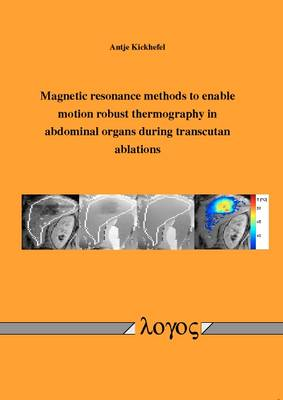 Magnetic Resonance Methods to Enable Motion Robust Thermography in Abdominal Organs During Transcutan Ablations (Paperback)