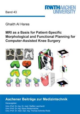 MRI as a Basis for Patient-Specific Morphological and Functional Planning for Computer-Assisted Knee Surgery - Aachener Beitrage zur Medizintechnik 43 (Paperback)