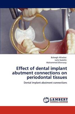 Effect of Dental Implant Abutment Connections on Periodontal Tissues (Paperback)