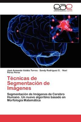 Tecnicas de Segmentacion de Imagenes (Paperback)