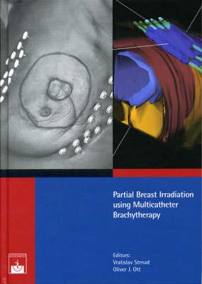 Partial Breast Irradiation Using Multicatheter Brachytherapy (Hardback)