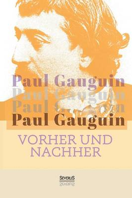 Vorher Und Nachher (Paperback)