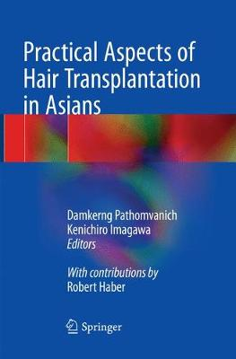 Practical Aspects of Hair Transplantation in Asians (Paperback)