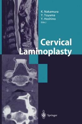 Cervical Laminoplasty (Paperback)