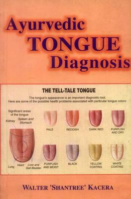 Ayurvedic Tongue Diagnosis (Paperback)