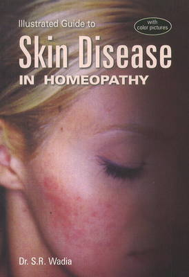 Illustrated Guide to Skin Disease in Homeopathy (Paperback)
