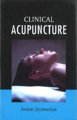 Clinical Acupuncture: Free Acupuncture Charts along with the book (Hardback)