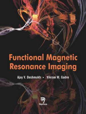 Functional Magnetic Resonance Imaging: Novel Transform Methods (Hardback)
