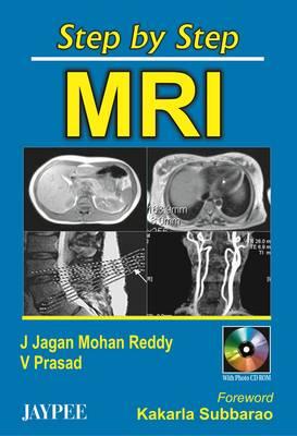 Step by Step MRI - Step by Step