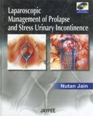 Laparoscopic Management of Prolapse and Stress Urinary Incontinence (Hardback)
