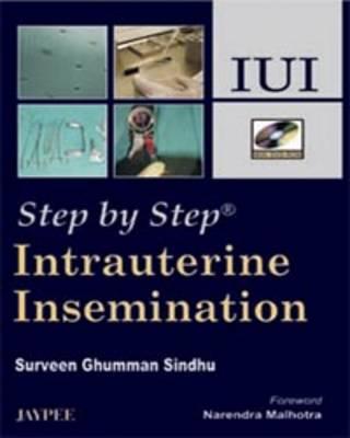 Step by Step: Intrauterine Insemination - Step by Step
