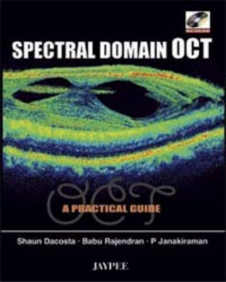 Spectral Domain OCT: A Practical Guide