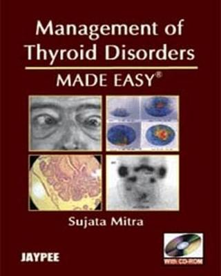 Management of Thyroid Disorders Made Easy