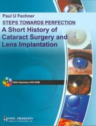 Steps Towards Perfection: A Short History of Cataract Surgery and Lens Implantation - Step by Step