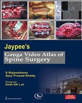 Jaypee's Ganga Video Atlas of Spine Surgery