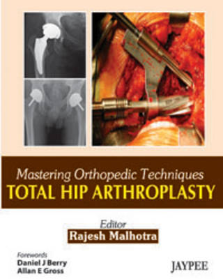 Mastering Orthopedic Techniques: Total Hip Arthroplasty (Hardback)