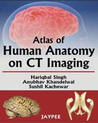 Atlas of Human Anatomy on CT Imaging (Paperback)