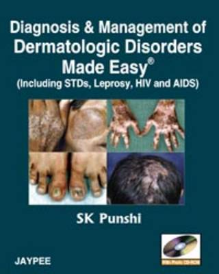 Diagnosis and Management of Dermatologic Disorders Made Easy: Including STDs, Leprosy, HIV and AIDs (Paperback)