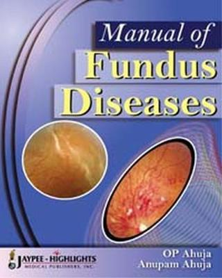 Manual of Fundus Diseases (Hardback)