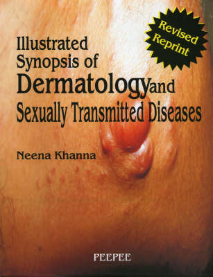 Illustrated Synopsis of Dermatology and Sexually Transmitted Diseases (Hardback)