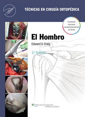Tecnicas en cirugia ortopedica. El hombro (Hardback)