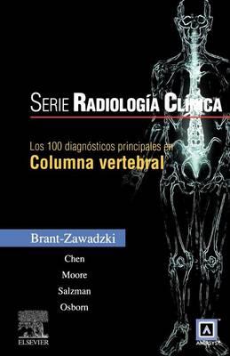 Los 100 Diagnosticos Principales En Columna Vertebral (Paperback)