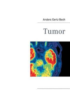 Tumor (Paperback)