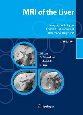 MRI of the Liver: Imaging Techniques, Contrast Enhancement, Differential Diagnosis (Hardback)
