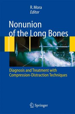Nonunion of the Long Bones: Diagnosis and treatment with compression-distraction techniques (Hardback)