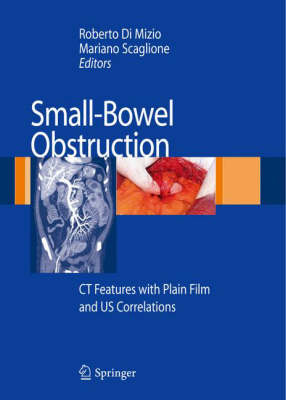 Small-Bowel Obstruction: CT Features with Plain Film and US correlations (Hardback)