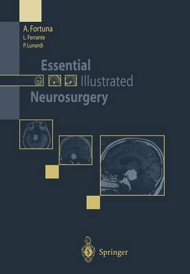Essential Illustrated Neurosurgery (Paperback)