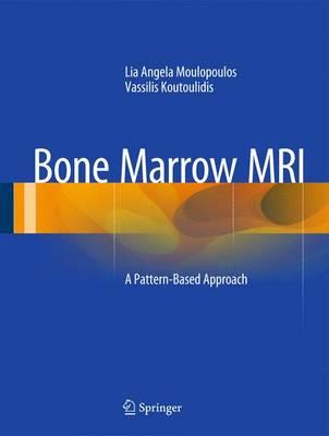 Bone Marrow MRI: A Pattern-Based Approach (Hardback)