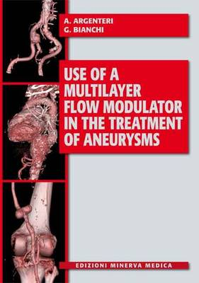 Use of a Multilayer Flow Modulator in the Treatment of Aneurysms (Paperback)