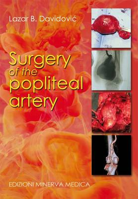 Surgery of the Popliteal Artery (Paperback)