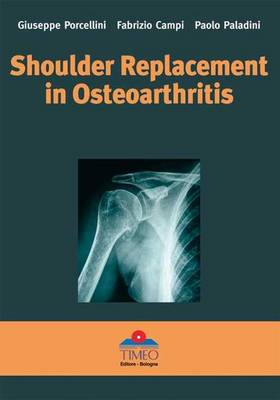 Shoulder Replacement in Osteoarthritis (Hardback)