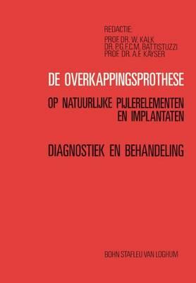 de Overkappingsprothese: Diagnostiek En Behandeling (Paperback)