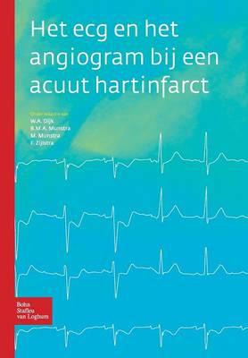Het ECG En Het Angiogram Bij Een Acuut Hartinfarct (Paperback)