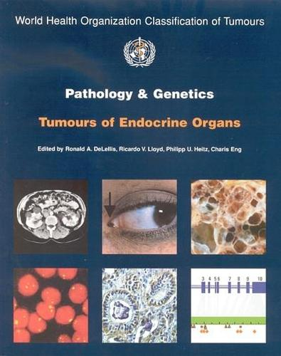 Pathology and genetics of tumours of the endocrine organs - World Health Organization Classification of Tumours 8 (Paperback)
