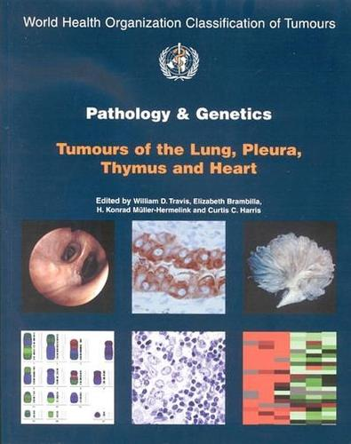 Pathology and genetics of tumours of the lung, plura, thymus and heart - World Health Organization Classification of Tumours 10 (Paperback)