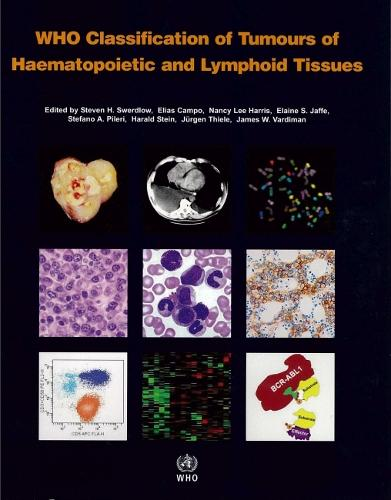 WHO classification of tumours of haematopoietic and lymphoid tissues: Vol. 2: International Agency for Research on Cancer - WHO classification of tumours of haematopoietic and lymphoid tissues (Paperback)