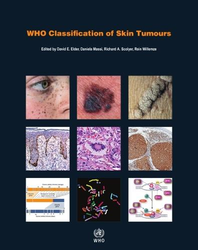 WHO Classification of Skin Tumours: WHO Classification of Tumours, Volume 11 - World Health Organization classification of tumours (Paperback)
