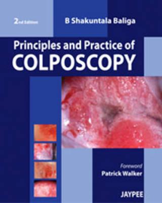 Principles and Practice of Colposcopy (Hardback)
