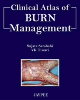 Clinical Atlas of Burn Managment (Hardback)