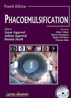 Phacoemulsification, Fourth Edition (Hardback)