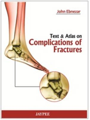 Text and Atlas of Complications of Fractures (Hardback)