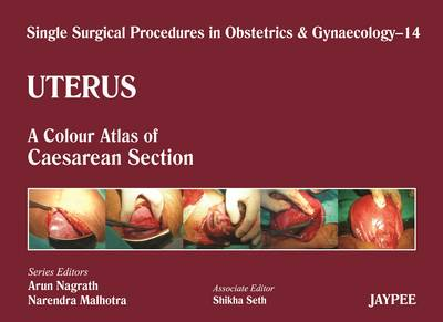 Single Surgical Procedures in Obstetrics and Gynaecology - Volume 14 - Uterus: A Colour Atlas of Caesarean Section - Single Surgical Procedures (Hardback)