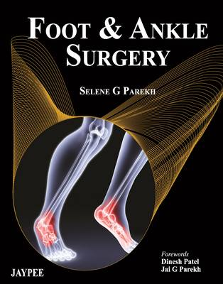 Foot and Ankle Surgery (Hardback)